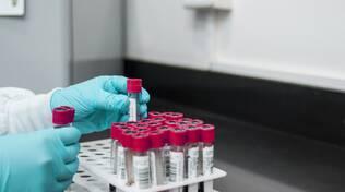 Campioni laboratorio analisi